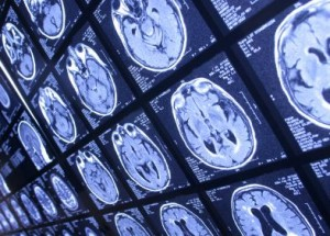 Groundbreaking Treatment:  Healing the Brain with Magnets